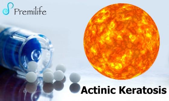 Actinic-Keratosis