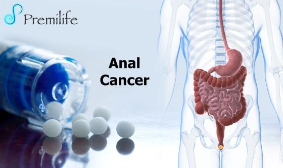 Anal-Cancer