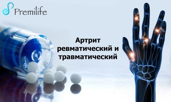 Arthritis-Rheumatoid-and-Traumatic-russian