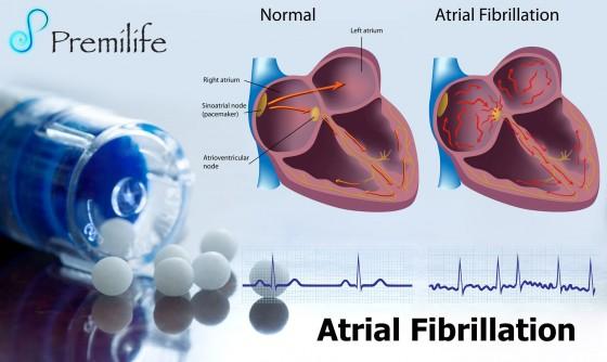 Atrial-Fibrillation