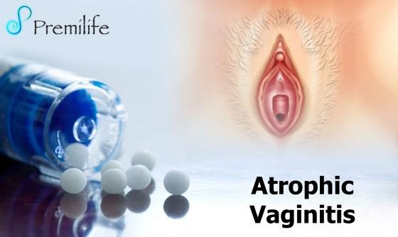 Atrophic-Vaginitis