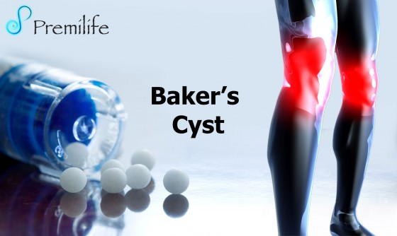 Bakers-cyst-Alinaps