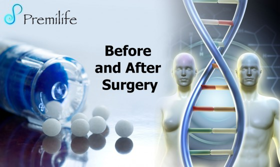 Before-and-After-Surgery