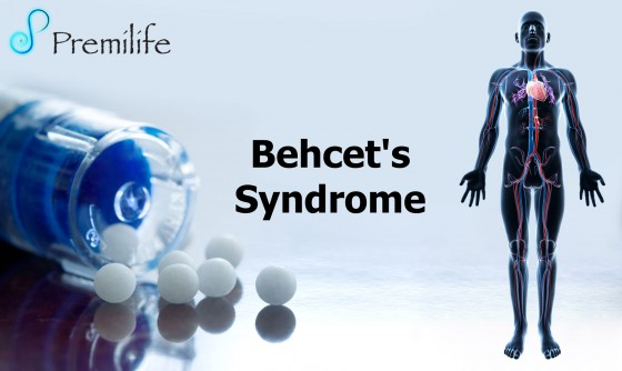 Behcet's-Syndrome