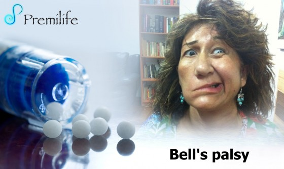 Bell's-palsy
