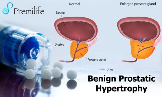 Benign-Prostatic-Hypertrophy