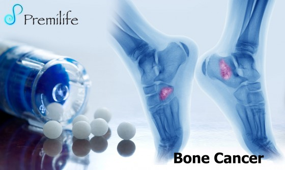 Bone-Cancer