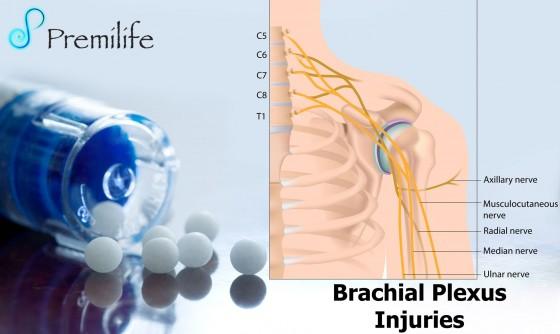 Brachial-Plexus-Injuries