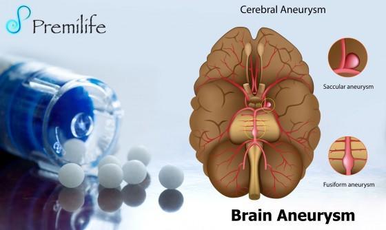 Brain-Aneurysm