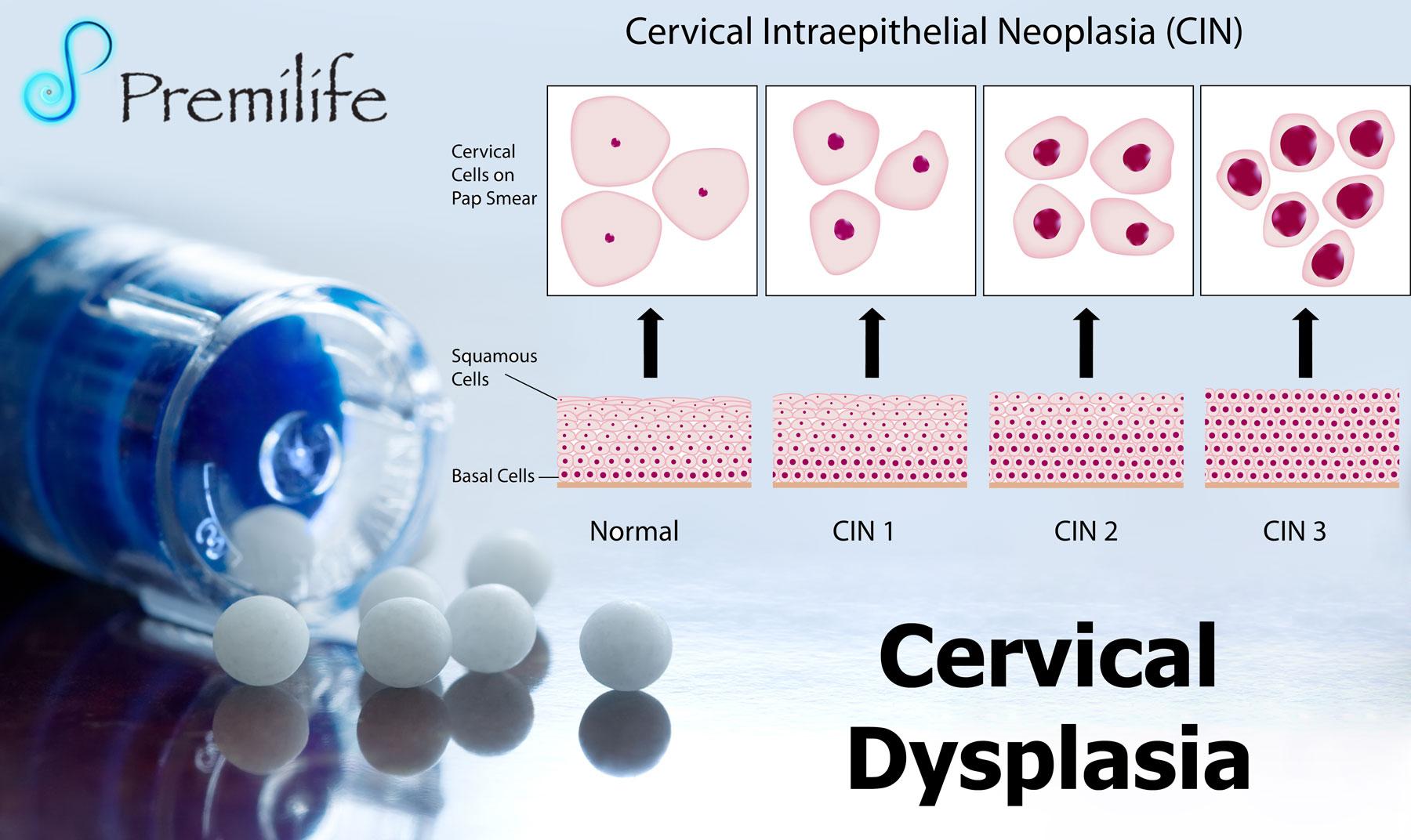 cervical dysplasia - premilife