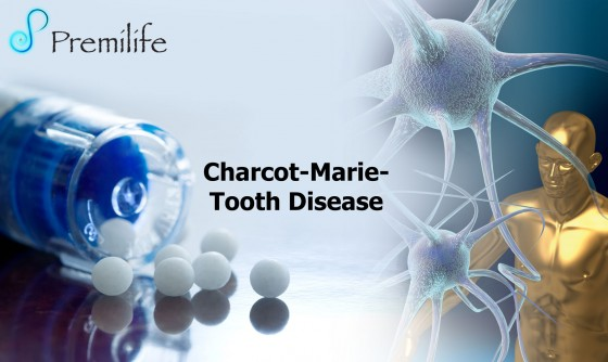 Charcot-Marie-Tooth-Disease