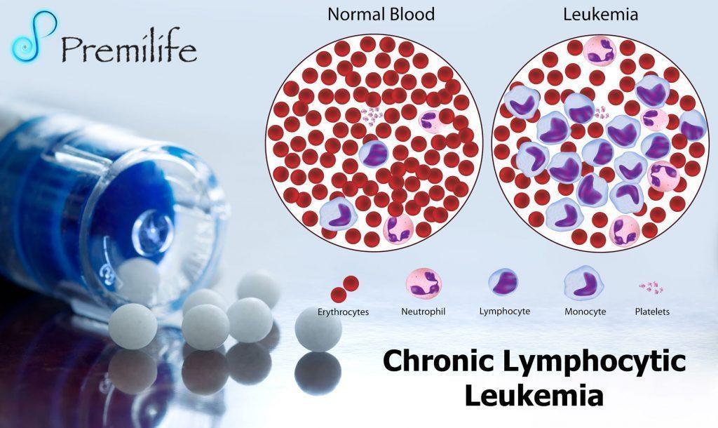 Chronic Lymphocytic Leukemia Premilife Homeopathic