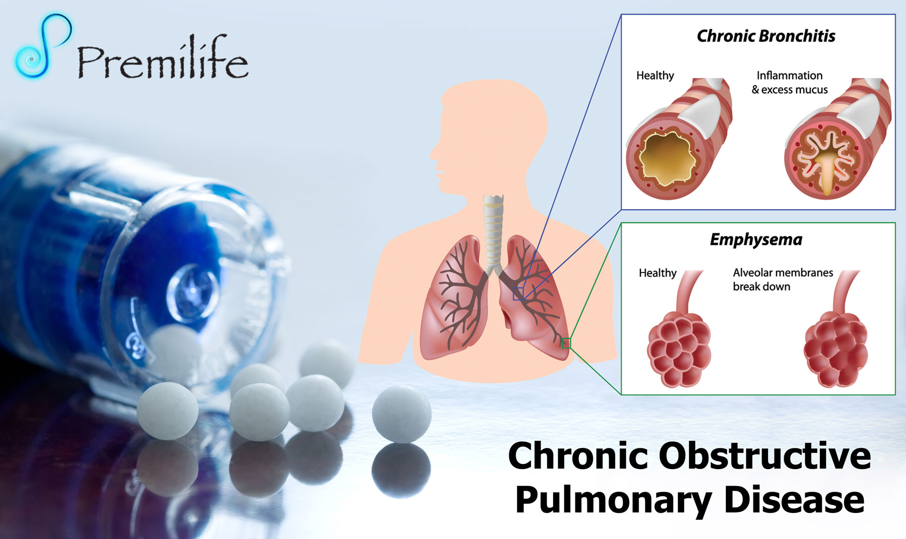 chronic obstructive pulmonary disease and support Association between social support and self-care behaviors in adults with chronic obstructive pulmonary disease zijing chen 2phd 1, vincent s fan md, mph.