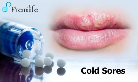 Cold-Sores