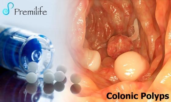 Colonic-Polyps