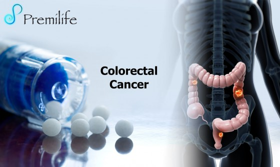 Colorectal-Cancer