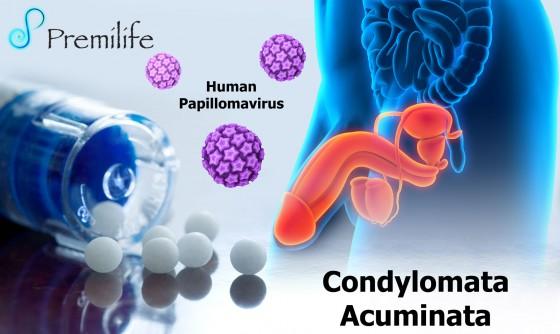 Condylomata-Acuminata