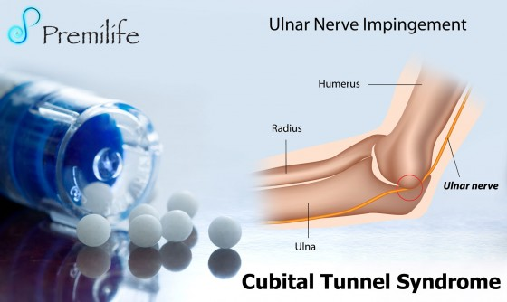 Cubital-Tunnel-Syndrome