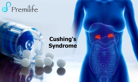 Cushing's-Syndrome