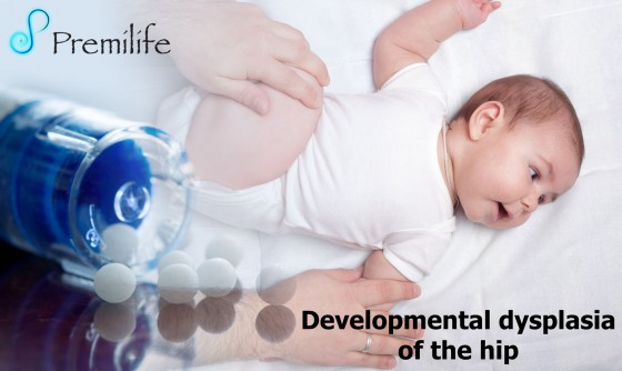 Developmental-dysplasia-of-the-hip