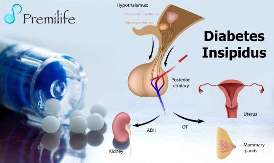 Diabetes-Insipidus