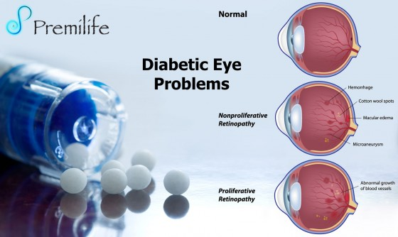 Diabetic-Eye-Problems