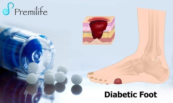 Diabetic-Foot