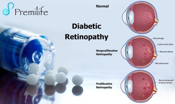 Diabetic--Retinopathy