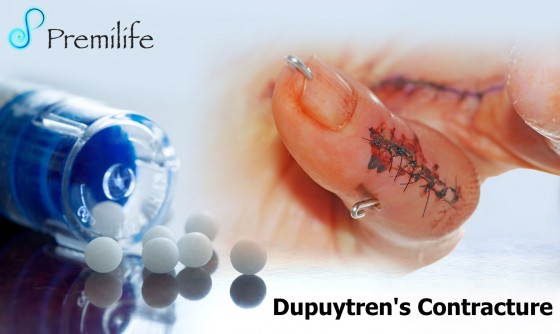 Dupuytren's-Contracture