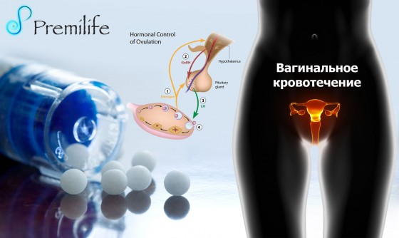 Dysfunctional-Uterine-Bleeding-russian