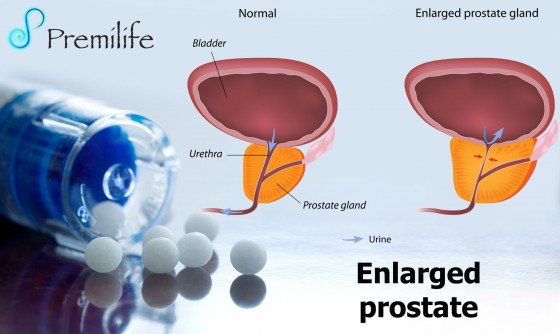 Enlarged-prostate