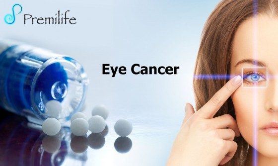 Eye-Cancer