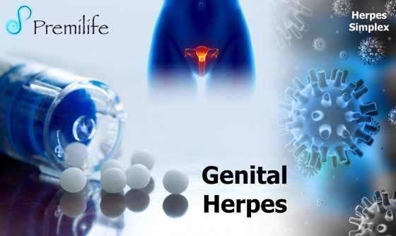 Genital-Herpes