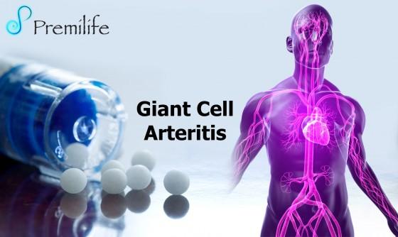 Giant-Cell-Arteritis