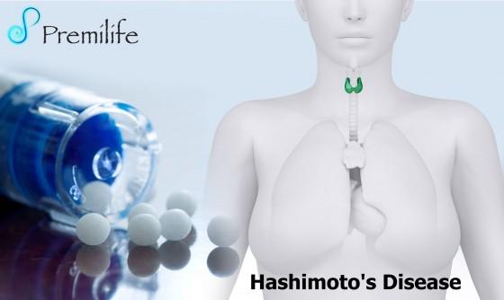 Hashimoto's-Disease