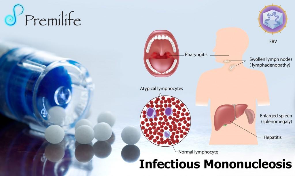 Canon adult get mononucleosis