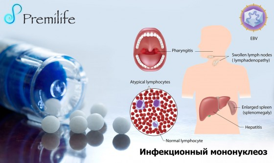 Infectious-Mononucleosis-russian