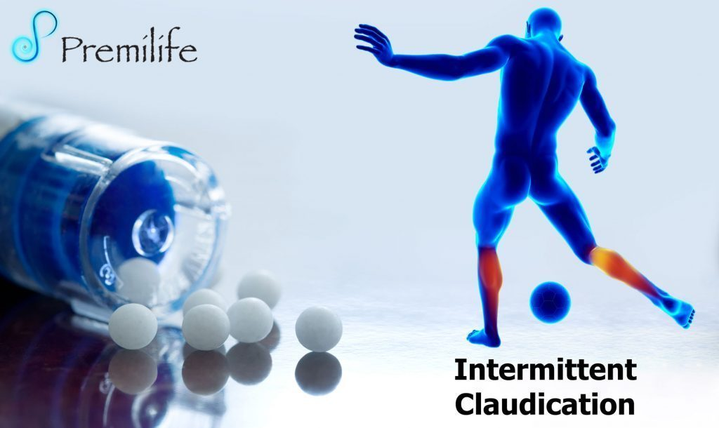Intermittent Claudication - Premilife - Homeopathic Remedies