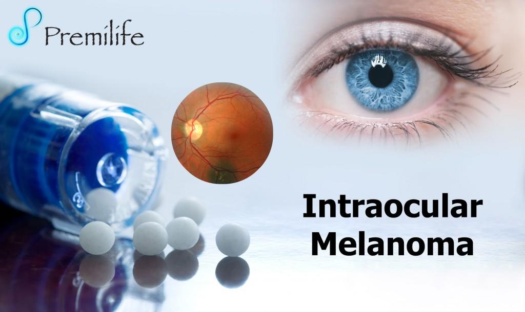 Intraocular Melanoma Premilife Homeopathic Remedies
