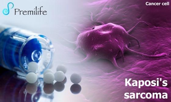 Kaposi's-sarcoma