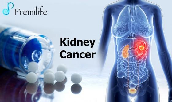 Kidney-Cancer-copy