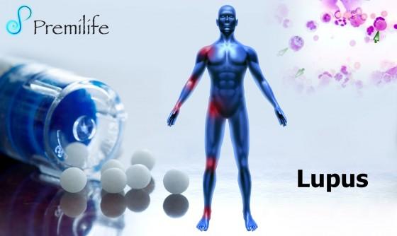 Lupus-2
