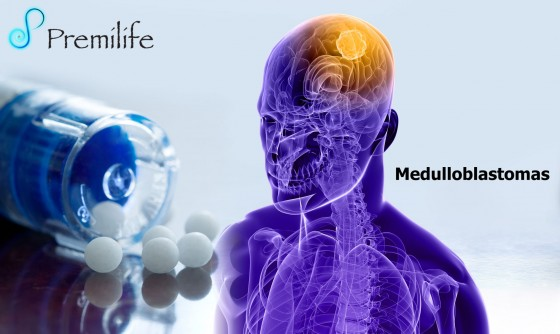 Medulloblastomas