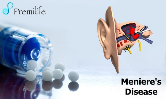 Meniere's-Disease