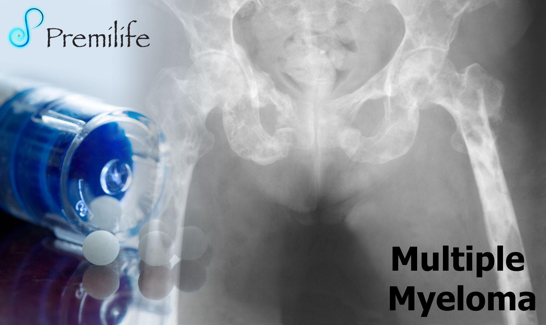 Multiple Myeloma - Premilife - Homeopathic Remedies Multiple Myeloma Cancer