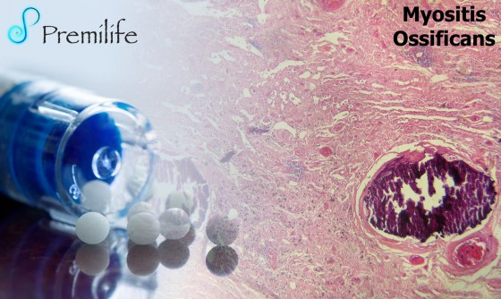 Myositis-ossificans