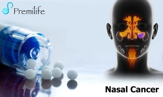 Nasal-Cancer