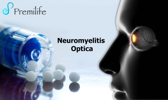 Neuromyelitis-Optica