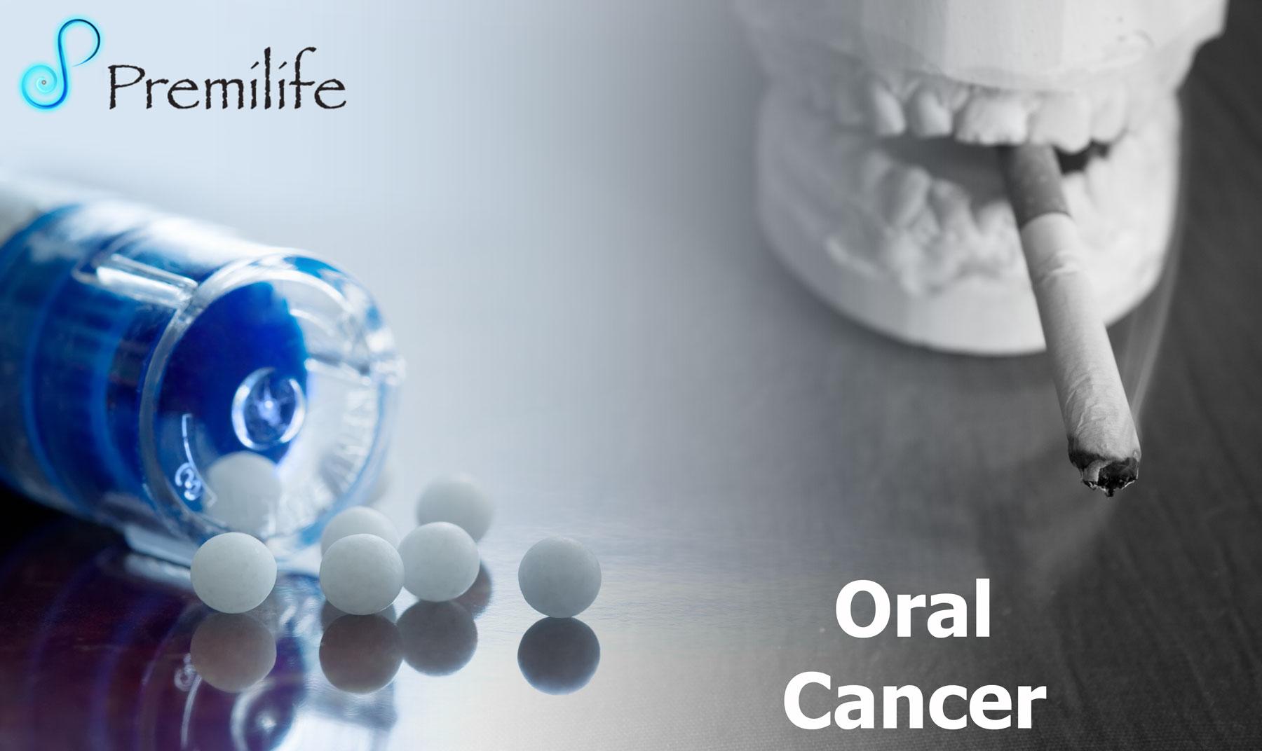 Oral cancer teeth
