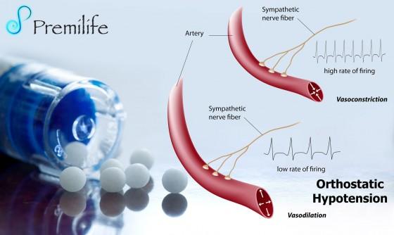 Orthostatic-Hypotension